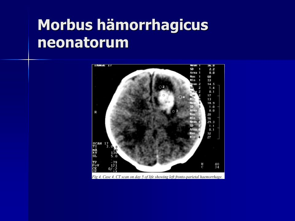 Morbus hämorrhagicus neonatorum