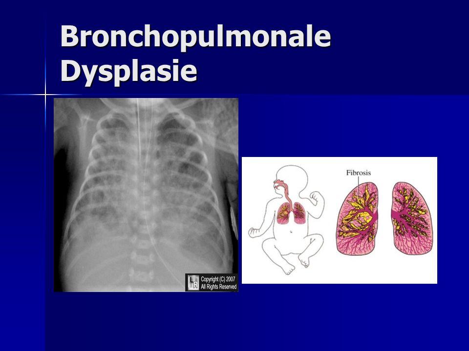Bronchopulmonale Dysplasie