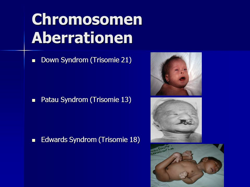 Chromosomen Aberrationen