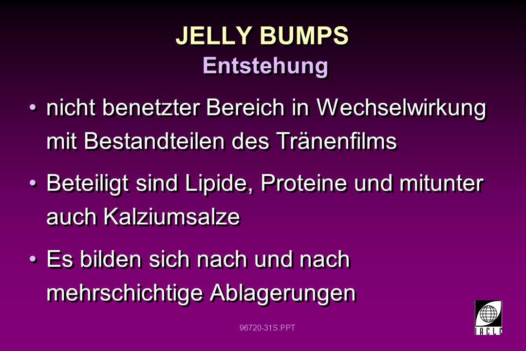 JELLY BUMPS Entstehung. nicht benetzter Bereich in Wechselwirkung mit Bestandteilen des Tränenfilms.