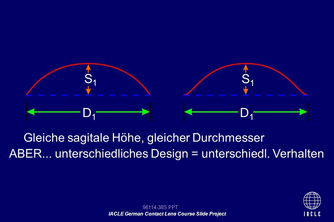 S1 S1 D1 D1 Gleiche sagitale Höhe, gleicher Durchmesser
