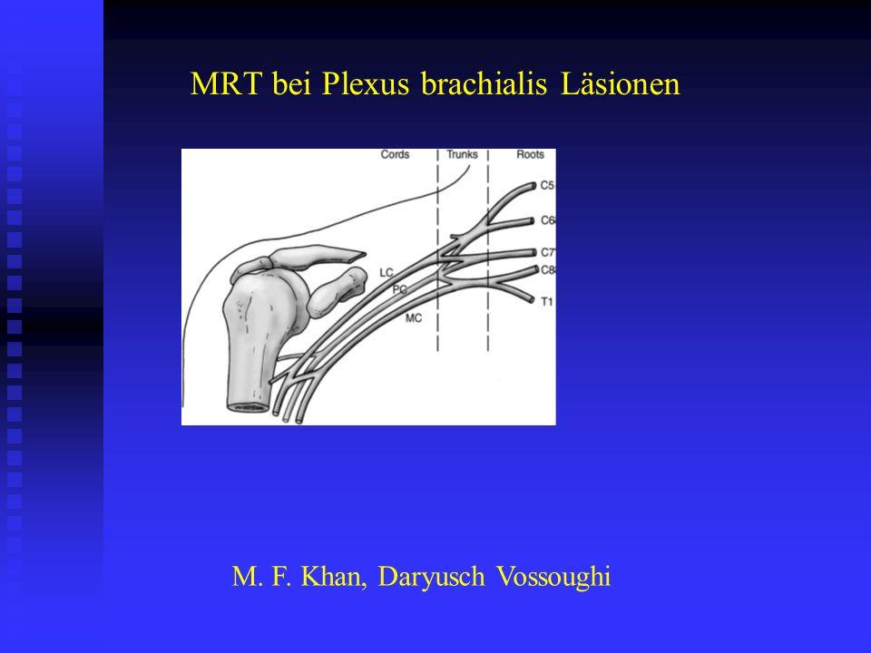 MRT bei Plexus brachialis Läsionen