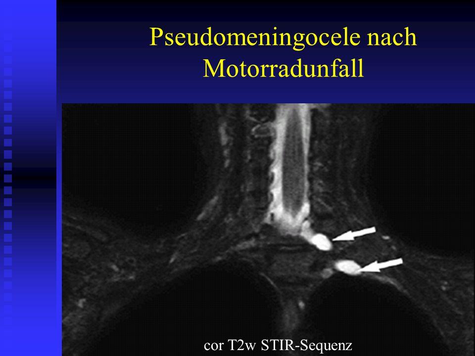 Pseudomeningocele nach Motorradunfall