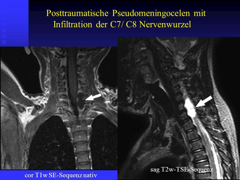Posttraumatische Pseudomeningocelen mit Infiltration der C7/ C8 Nervenwurzel