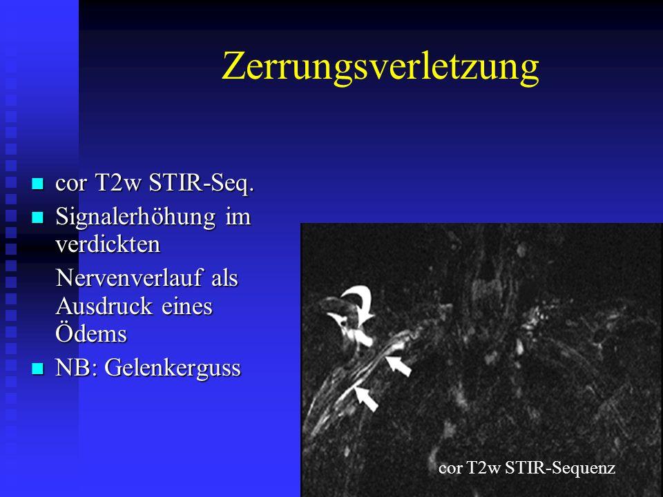 Zerrungsverletzung cor T2w STIR-Seq. Signalerhöhung im verdickten