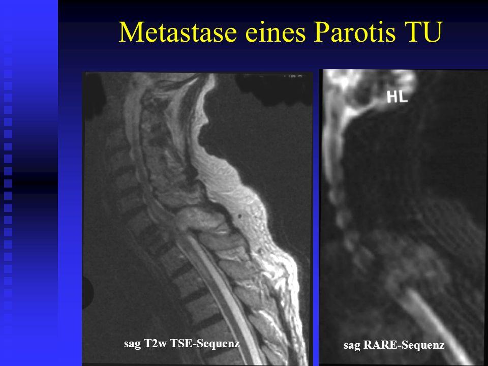 Metastase eines Parotis TU