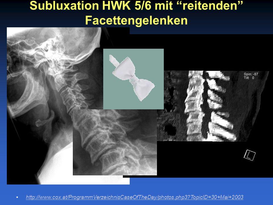 Subluxation HWK 5/6 mit reitenden Facettengelenken