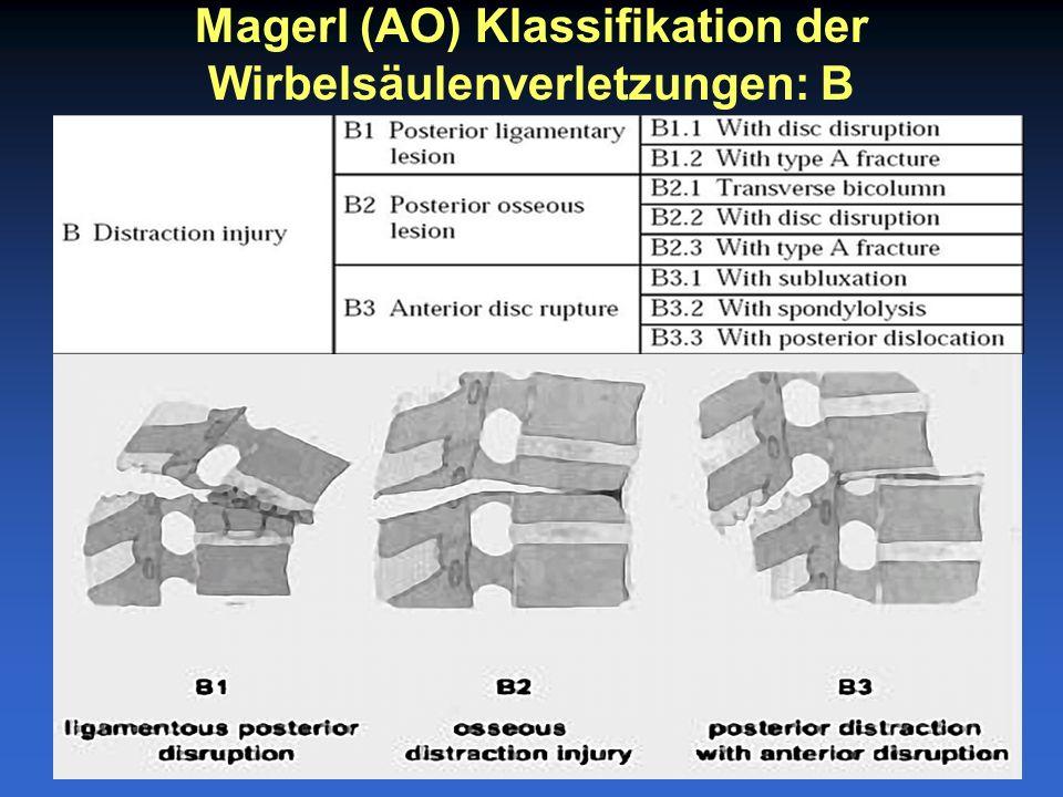 Magerl (AO) Klassifikation der Wirbelsäulenverletzungen: B