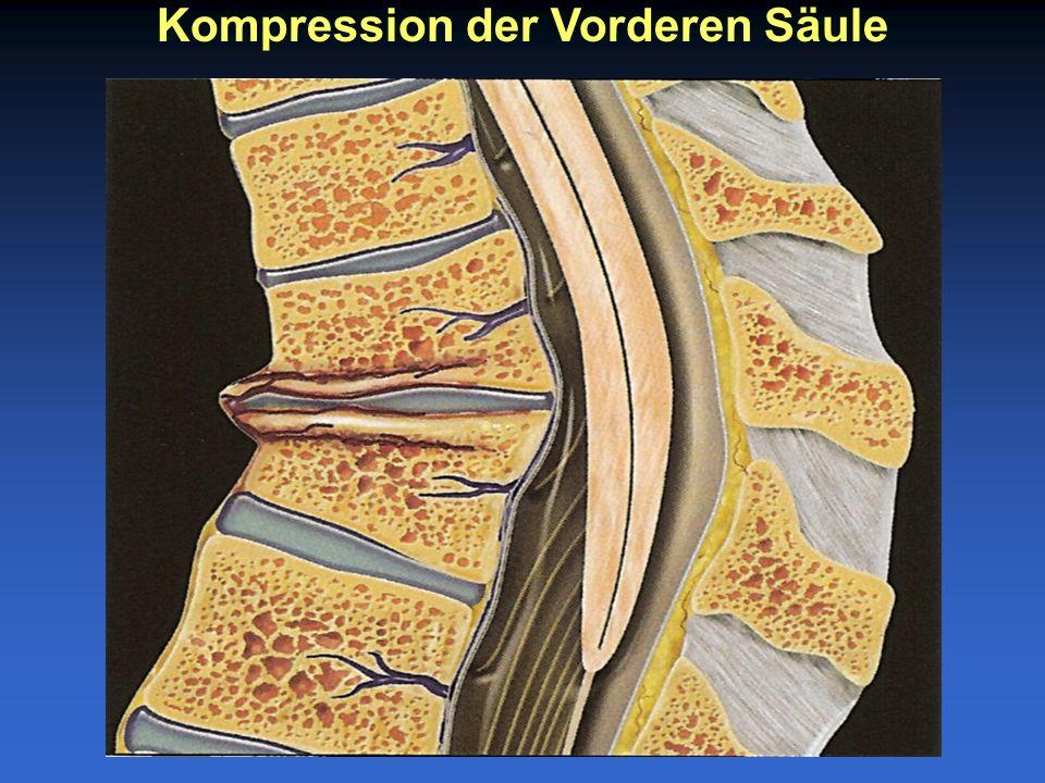 Kompression der Vorderen Säule