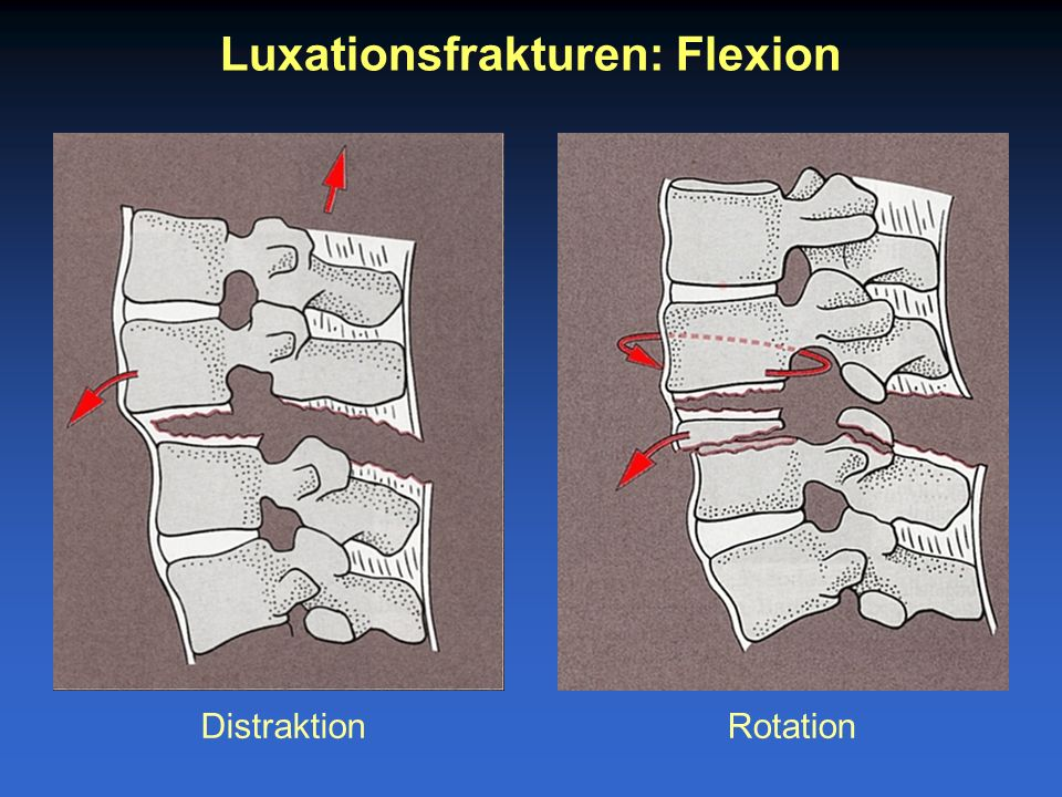 Luxationsfrakturen: Flexion