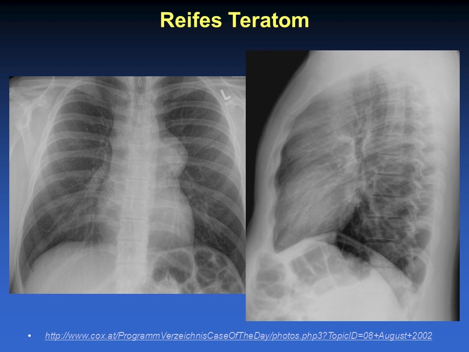 Reifes Teratom http://www.cox.at/ProgrammVerzeichnisCaseOfTheDay/photos.php3 TopicID=08+August+2002