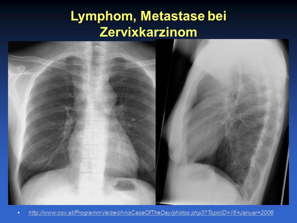 Lymphom, Metastase bei Zervixkarzinom
