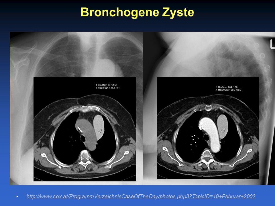 Bronchogene Zyste http://www.cox.at/ProgrammVerzeichnisCaseOfTheDay/photos.php3 TopicID=10+Februar+2002.