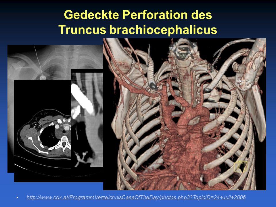 Gedeckte Perforation des Truncus brachiocephalicus