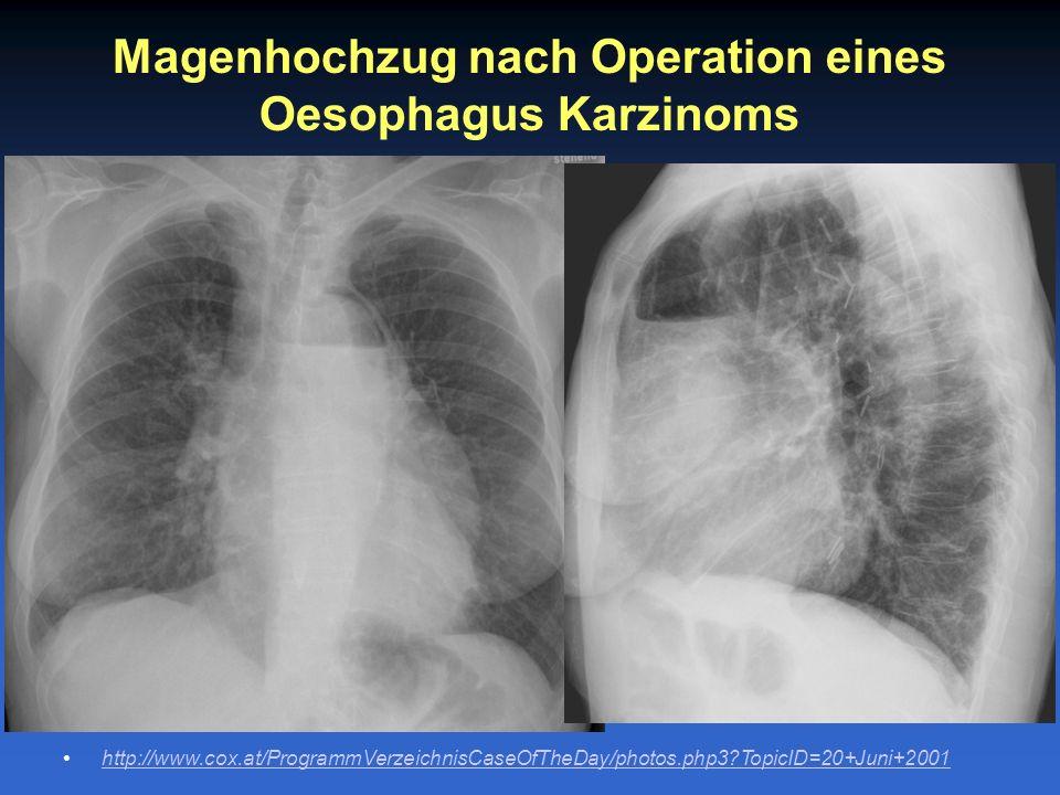 Magenhochzug nach Operation eines Oesophagus Karzinoms