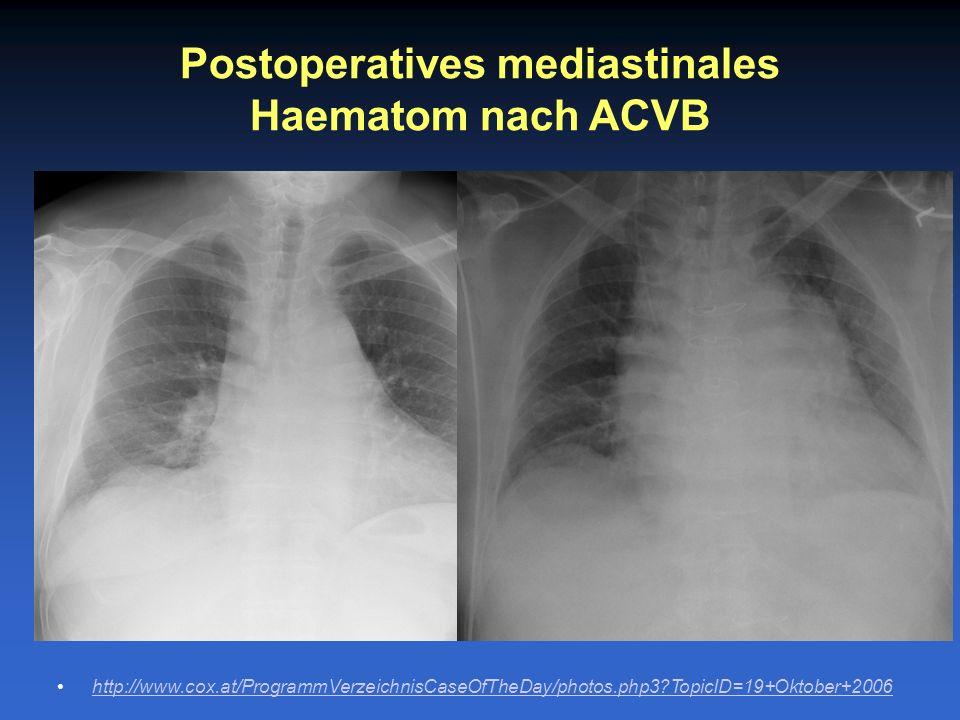 Postoperatives mediastinales Haematom nach ACVB
