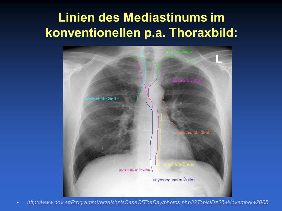 Linien des Mediastinums im konventionellen p.a. Thoraxbild: