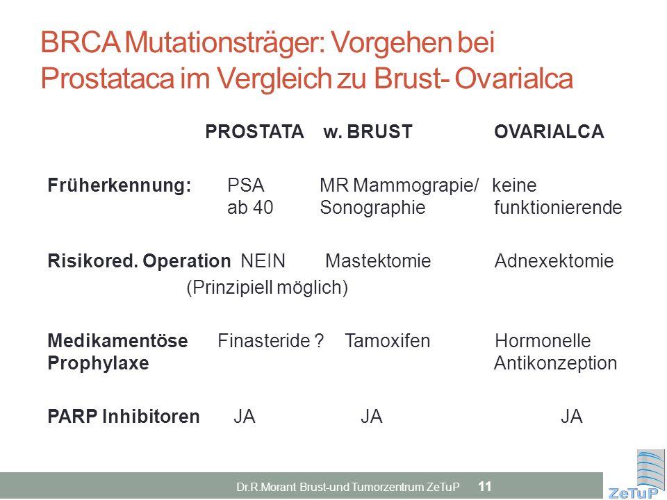 BRCA Mutationsträger: Vorgehen bei Prostataca im Vergleich zu Brust- Ovarialca