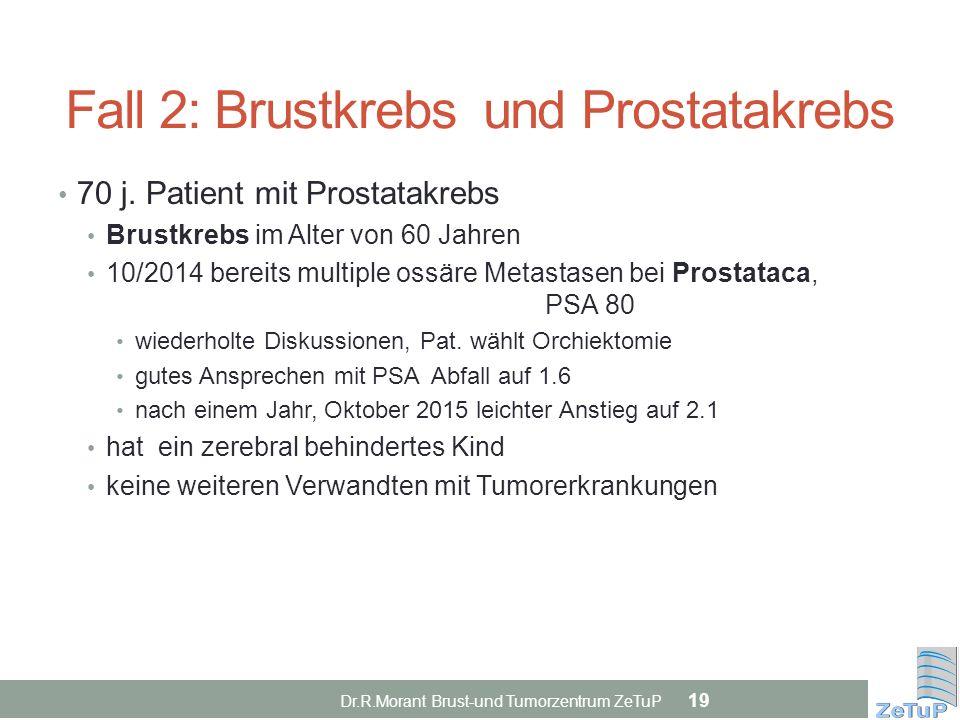 Fall 2: Brustkrebs und Prostatakrebs