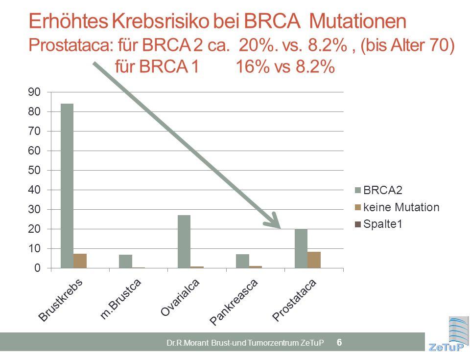 Erhöhtes Krebsrisiko bei BRCA Mutationen Prostataca: für BRCA 2 ca. 20%. vs. 8.2% , (bis Alter 70) für BRCA 1 16% vs 8.2%