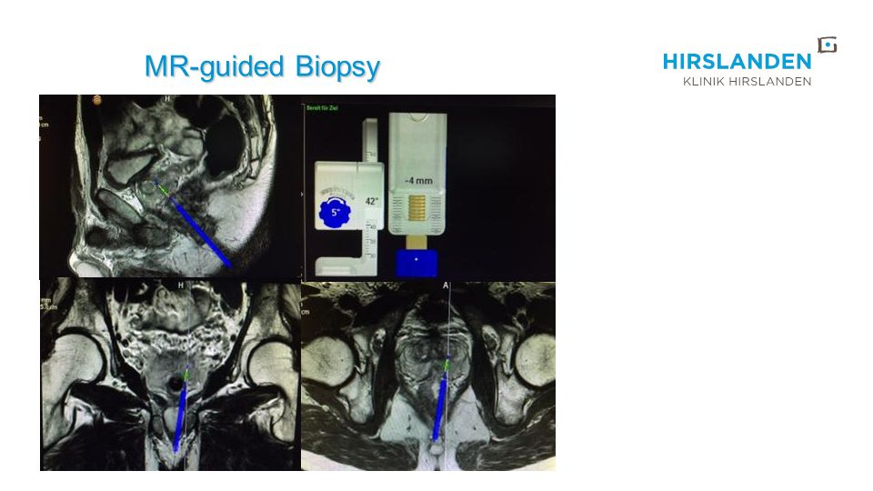 MR-guided Biopsy