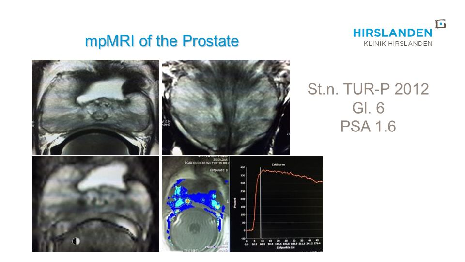 mpMRI of the Prostate St.n. TUR-P 2012 Gl. 6 PSA 1.6