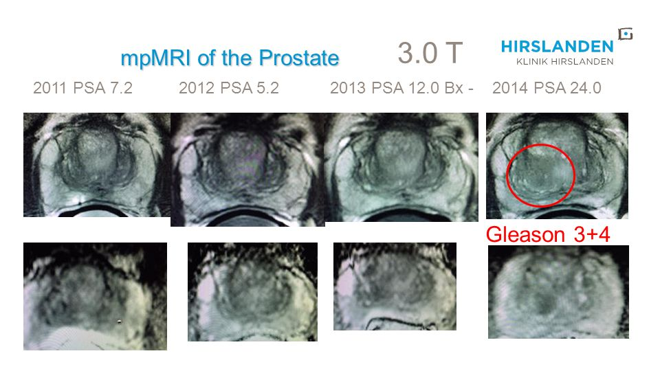 3.0 T mpMRI of the Prostate Gleason 3+4