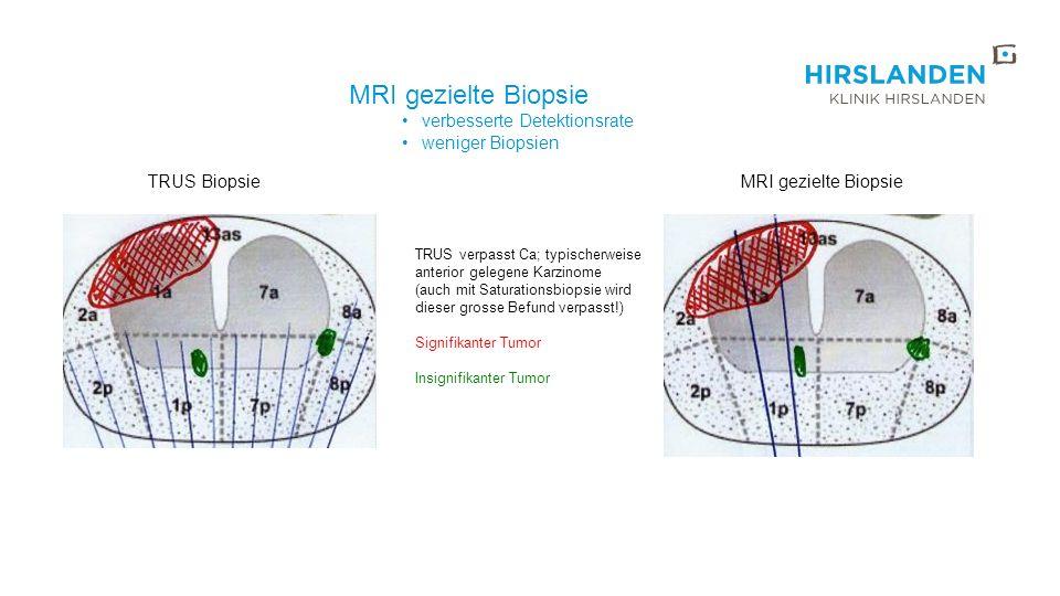 MRI gezielte Biopsie verbesserte Detektionsrate weniger Biopsien