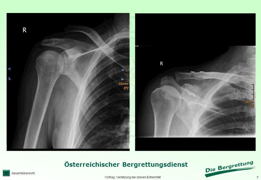 Vortrag: Verletzung der oberen Extremität