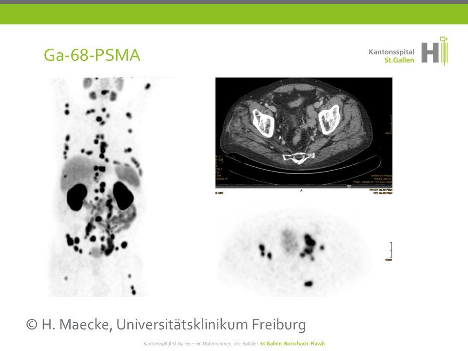 Ga-68-PSMA © H. Maecke, Universitätsklinikum Freiburg
