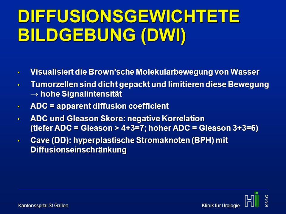 DIFFUSIONSGEWICHTETE BILDGEBUNG (DWI)