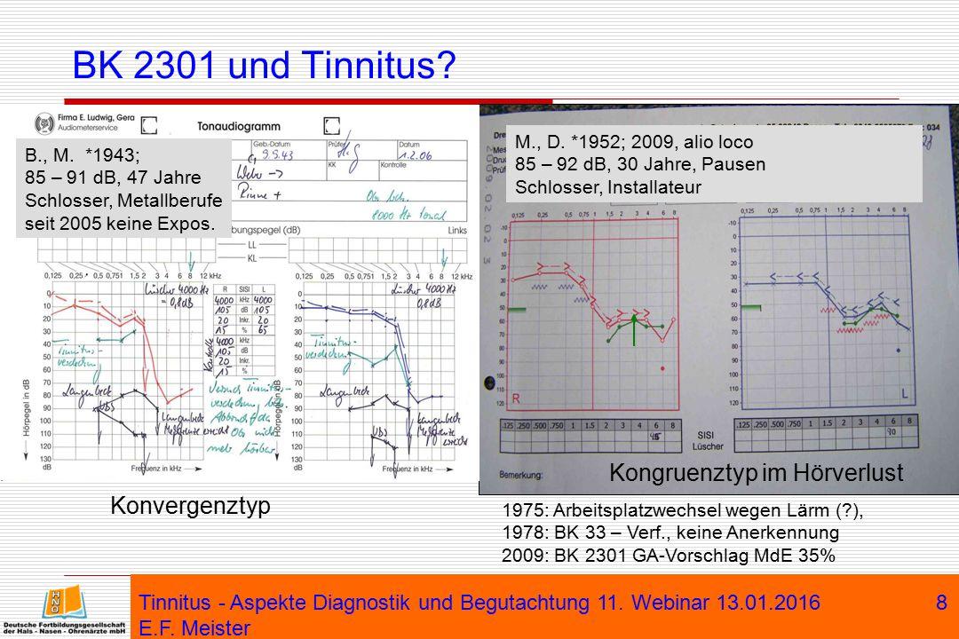 BK 2301 und Tinnitus Kongruenztyp im Hörverlust Konvergenztyp