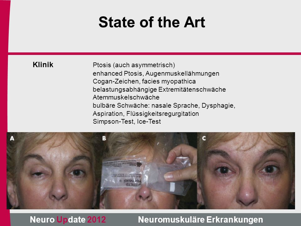 State of the Art Klinik Ptosis (auch asymmetrisch)