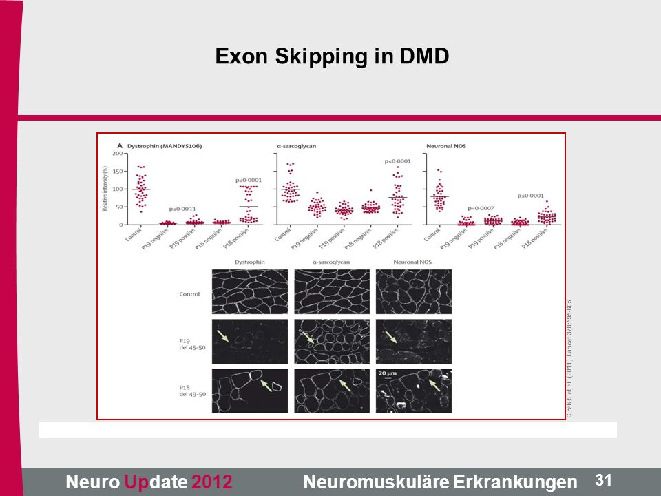 Exon Skipping in DMD Cirak S et al. (2011) Lancet 378:595-605 31