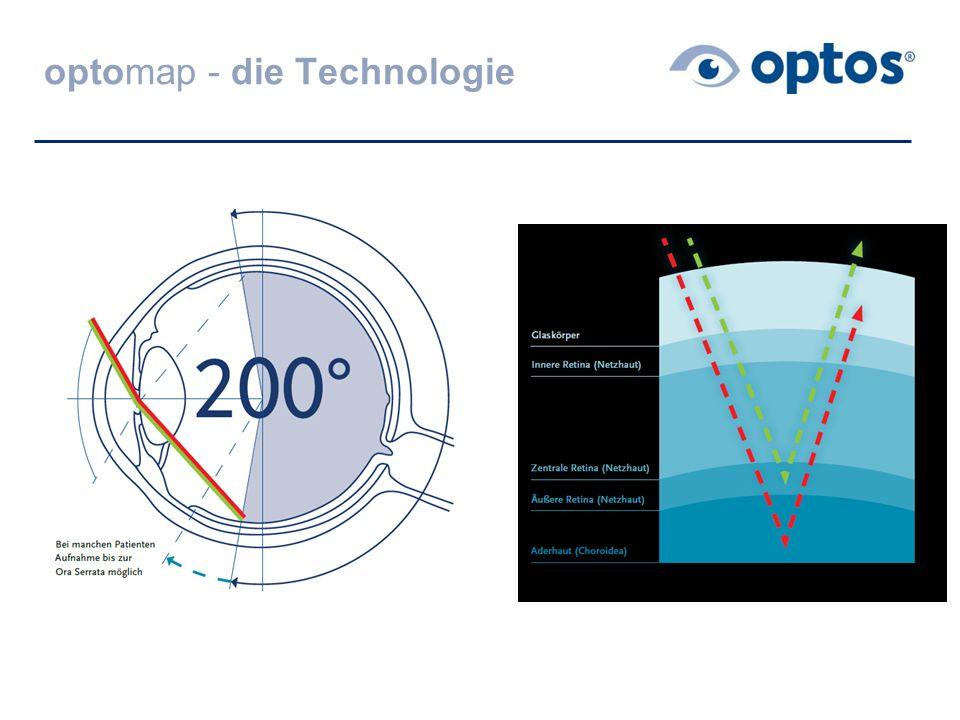 optomap - die Technologie