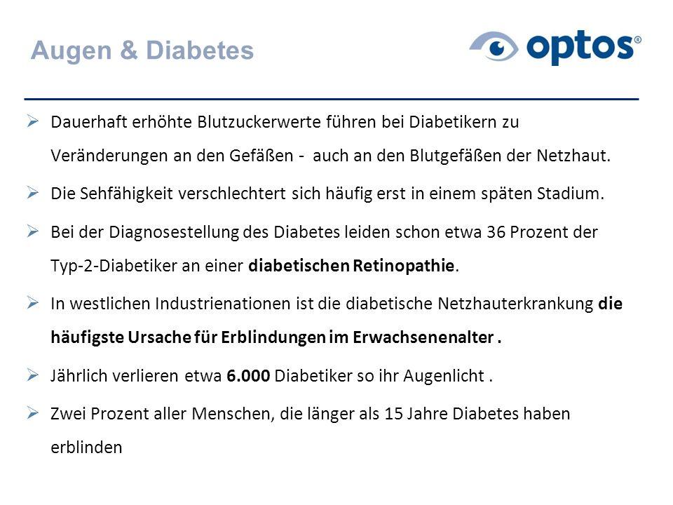 Augen & Diabetes Dauerhaft erhöhte Blutzuckerwerte führen bei Diabetikern zu Veränderungen an den Gefäßen - auch an den Blutgefäßen der Netzhaut.