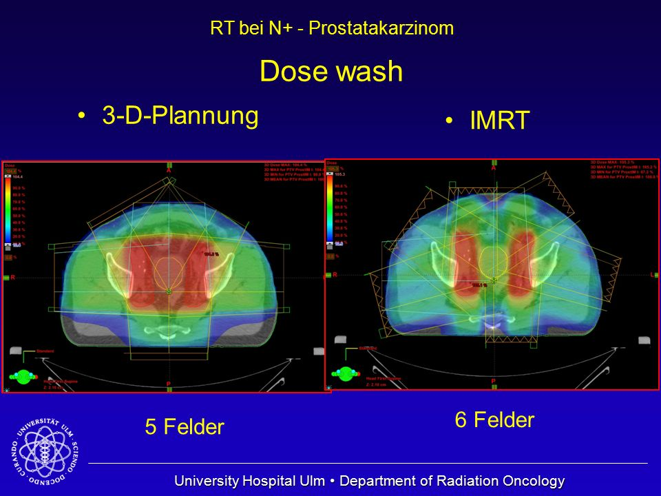 Dose wash 3-D-Plannung IMRT 6 Felder 5 Felder