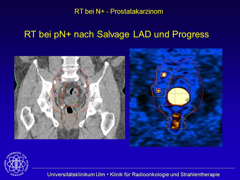 RT bei pN+ nach Salvage LAD und Progress