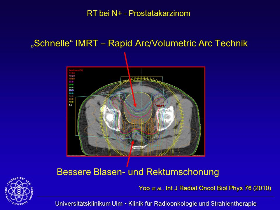 """Schnelle IMRT – Rapid Arc/Volumetric Arc Technik"