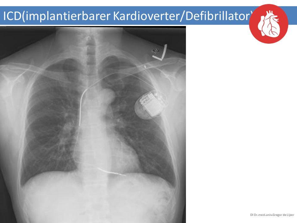ICD(implantierbarer Kardioverter/Defibrillator)