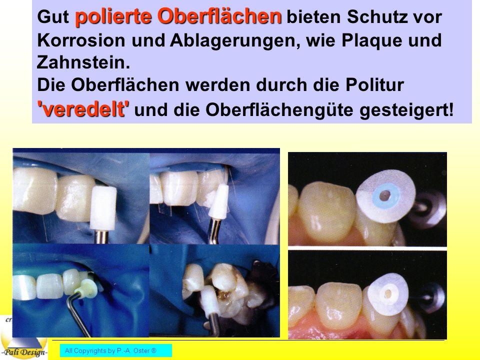 Gut polierte Oberflächen bieten Schutz vor Korrosion und Ablagerungen, wie Plaque und Zahnstein.