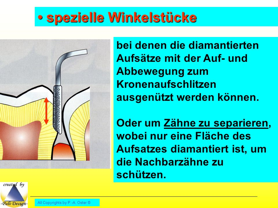 • spezielle Winkelstücke
