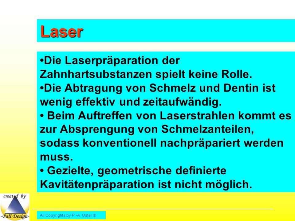 Laser •Die Laserpräparation der Zahnhartsubstanzen spielt keine Rolle.