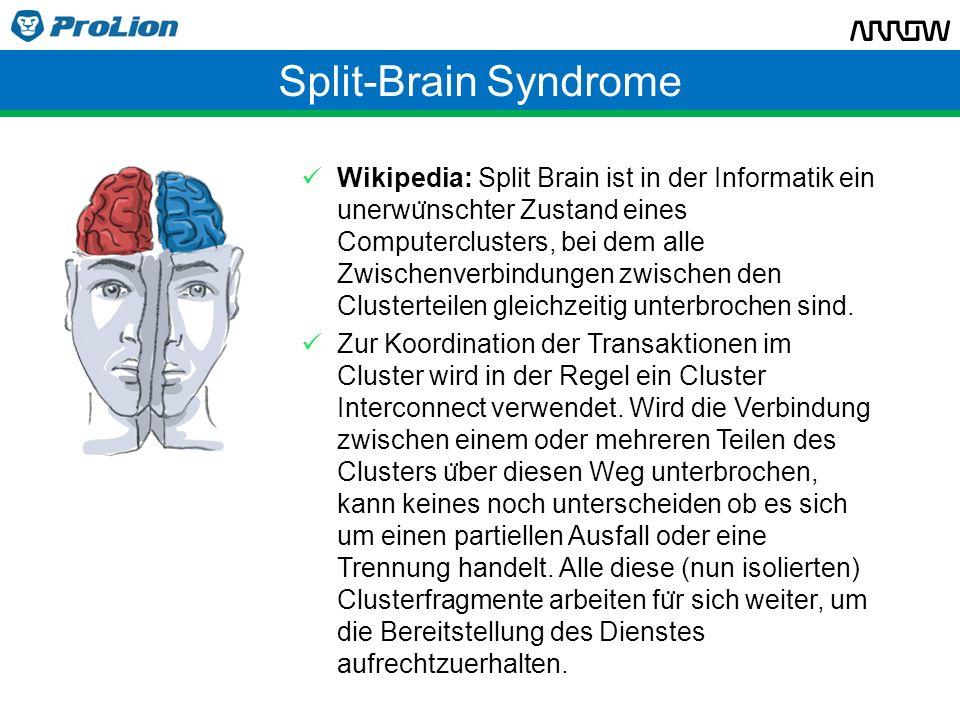Split-Brain Syndrome