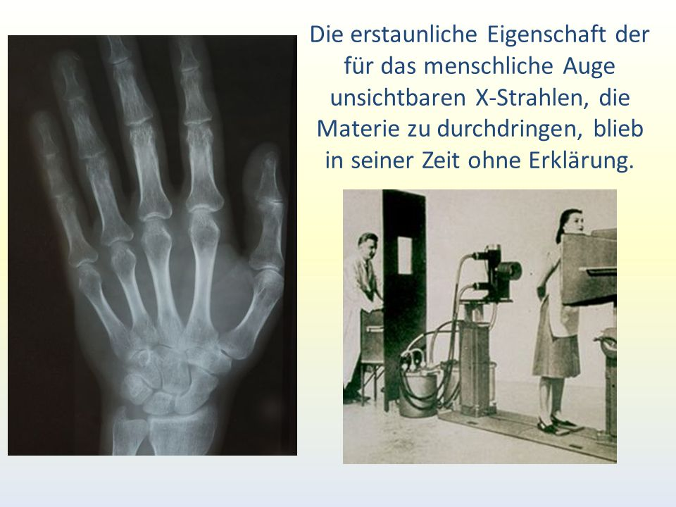 Die erstaunliche Eigenschaft der für das menschliche Auge unsichtbaren X-Strahlen, die Materie zu durchdringen, blieb in seiner Zeit ohne Erklärung.