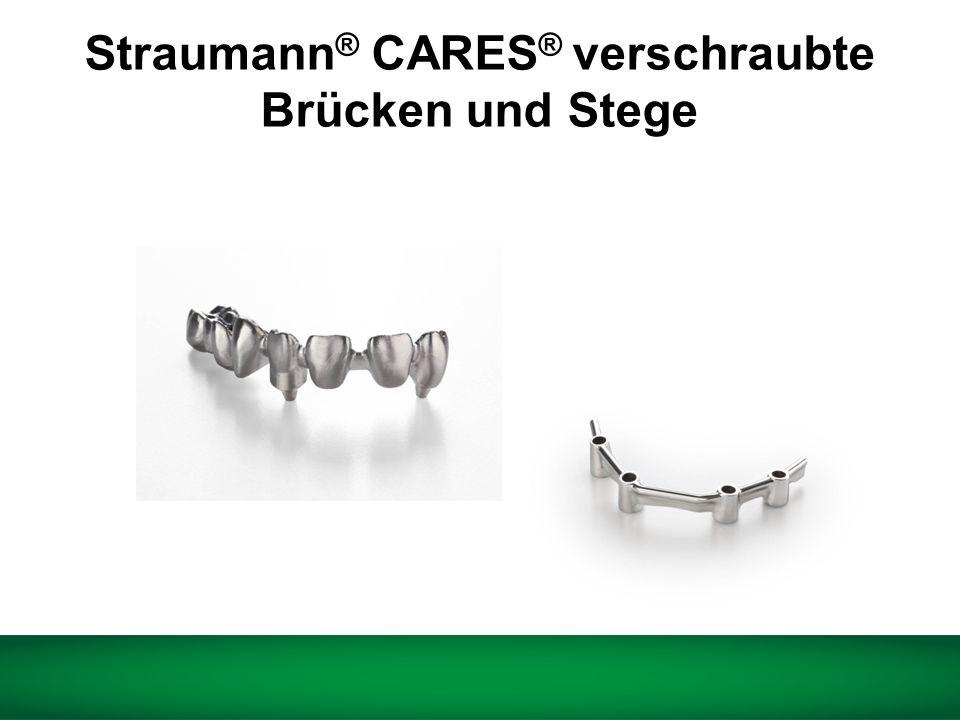 Straumann® CARES® verschraubte Brücken und Stege