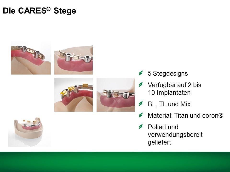 Die CARES® Stege 5 Stegdesigns Verfügbar auf 2 bis 10 Implantaten