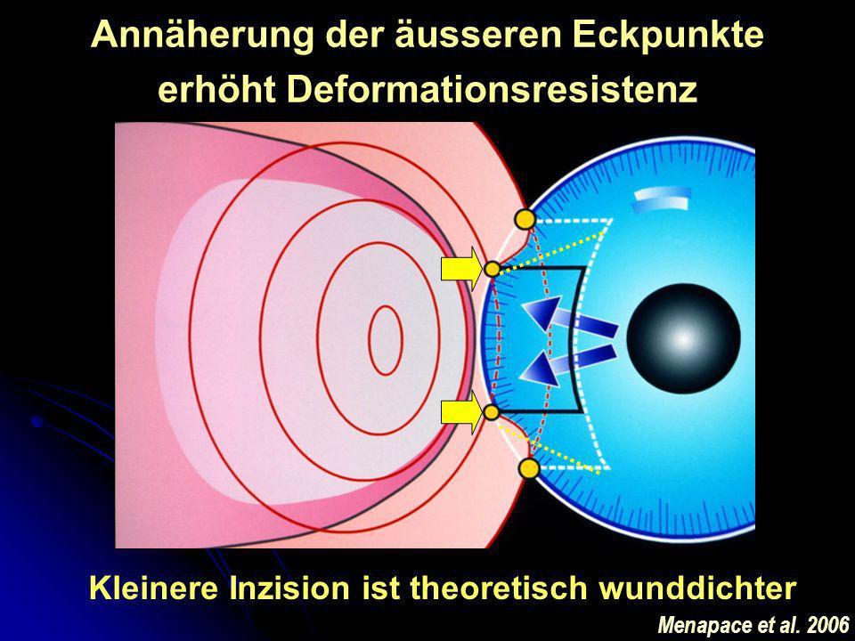 Annäherung der äusseren Eckpunkte erhöht Deformationsresistenz