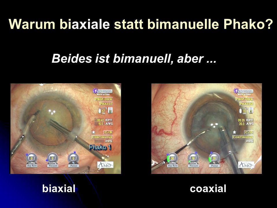 Warum biaxiale statt bimanuelle Phako