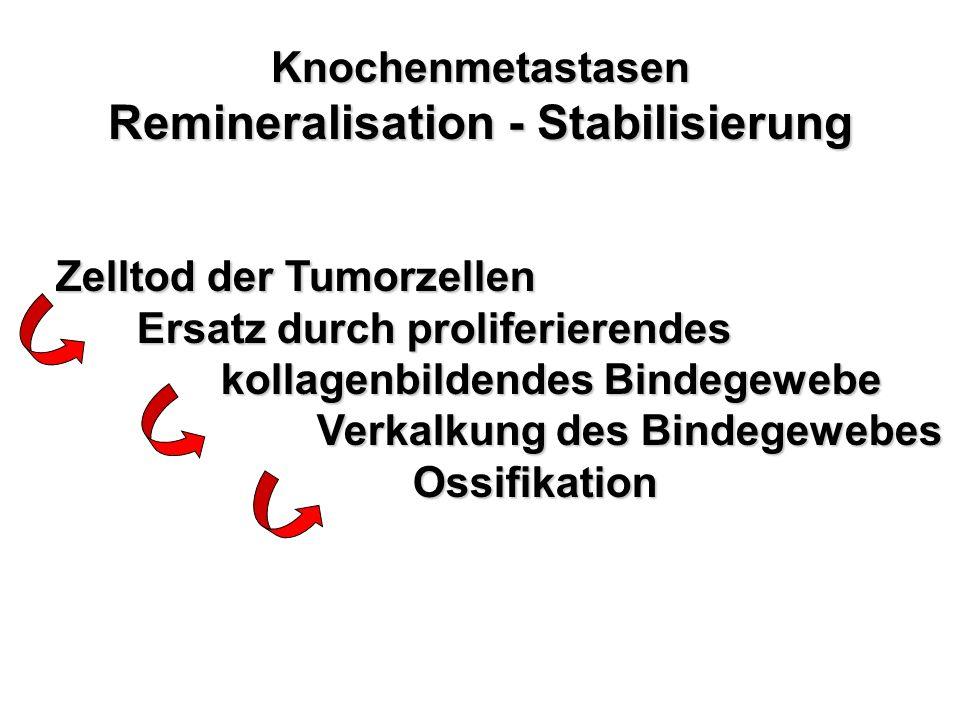 Knochenmetastasen Remineralisation - Stabilisierung